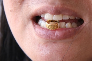 «На зуб»